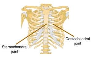 20150530_Costochondritis